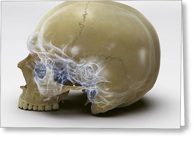 Anatomy Of The Skull Greeting Card by Science Picture Co