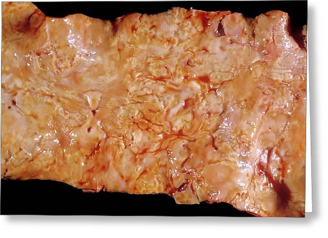 Aorta In Syphilis Greeting Card by Pr. R. Abelanet - Cnri