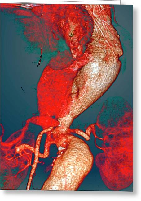 Arterial Aneurysms In Marfan Syndrome Greeting Card by Zephyr
