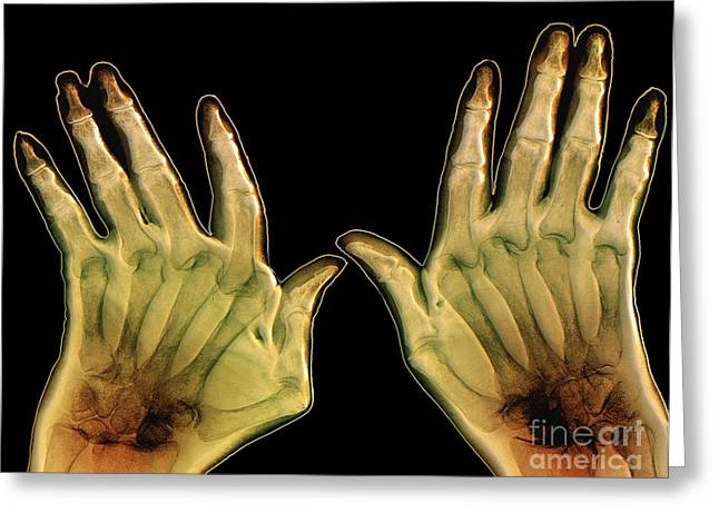 Arthritic Greeting Cards - Arthritic Hands, X-ray Greeting Card by Zephyr
