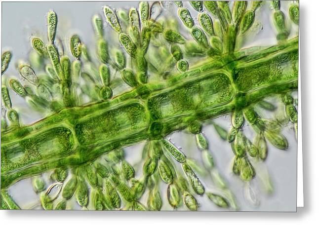 Batrachospermum Alga Filament Greeting Card by Gerd Guenther