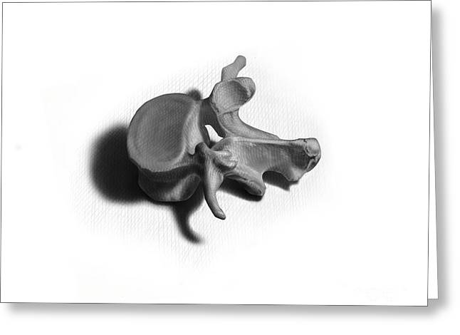 Vertebra Greeting Cards - Black And White Illustration Of A Human Greeting Card by Nicholas Mayeux