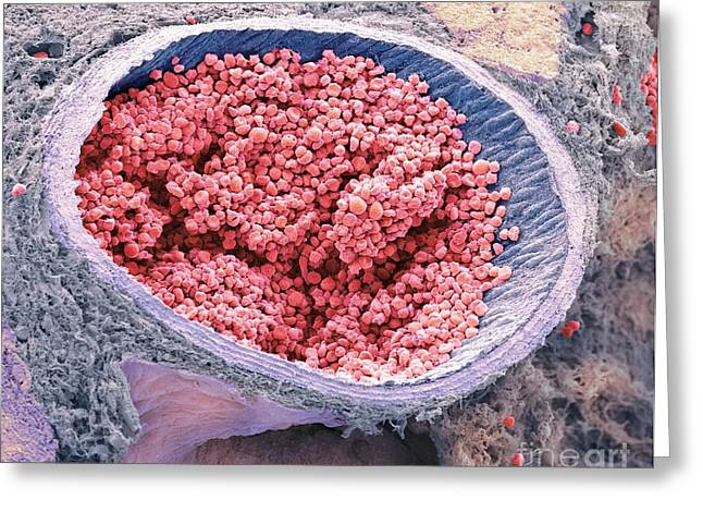Aorta Greeting Cards - Blood-filled Fetal Aorta, Sem Greeting Card by Steve Gschmeissner