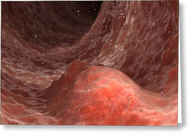 Internal Growth Greeting Cards - Bowel disease, artwork Greeting Card by Science Photo Library