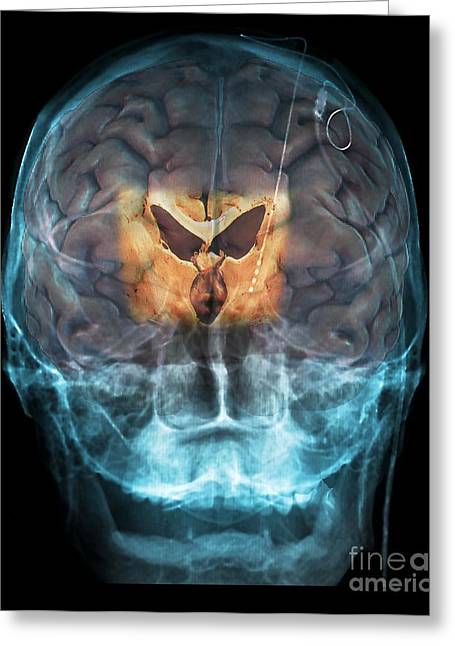Electrical Stimulation Greeting Cards - Brain Implants For Parkinsons Disease Greeting Card by Zephyr