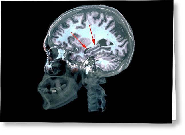 Brain In Alzheimer's Disease Greeting Card by Zephyr
