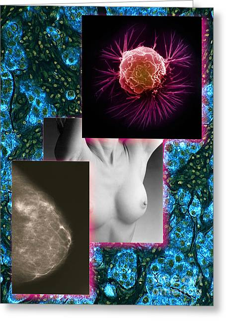 Pathology Greeting Cards - Breast Cancer Montage Greeting Card by Scott Camazine