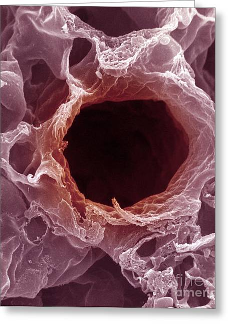 Bronchi Greeting Cards - Bronchus, Sem Greeting Card by David M. Phillips