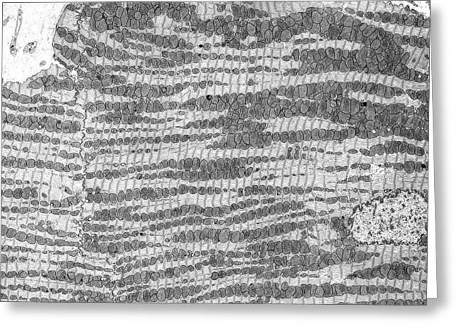 Biological Greeting Cards - Cardiac muscle, TEM Greeting Card by Science Photo Library