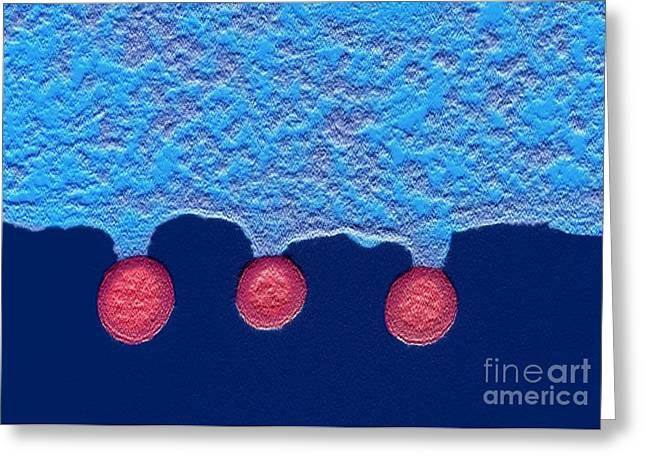 False-colour Greeting Cards - Cell Infected With Hiv, Tem Greeting Card by Nibsc