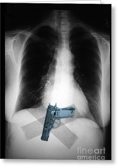 Terrorism Greeting Cards - Chest X-ray Showing Hidden Gun Greeting Card by Scott Camazine