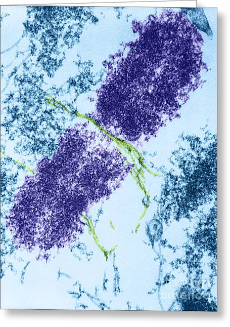 Color Enhanced Greeting Cards - Chromosome With Microtubules, Tem Greeting Card by David M. Phillips