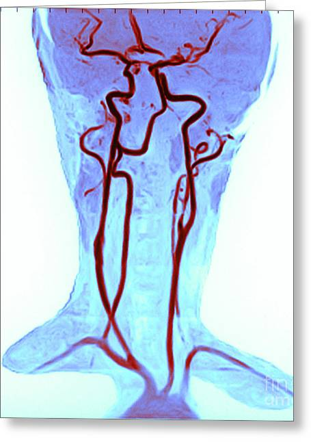 Angiogram Greeting Cards - Circle Of Willis Greeting Card by Susan Leavines