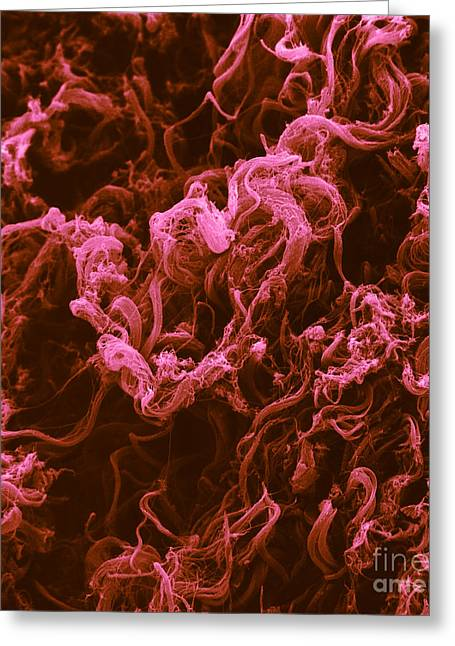 Scanning Electron Micrograph Greeting Cards - Collagen Fibers Greeting Card by David M. Phillips / The Population Council