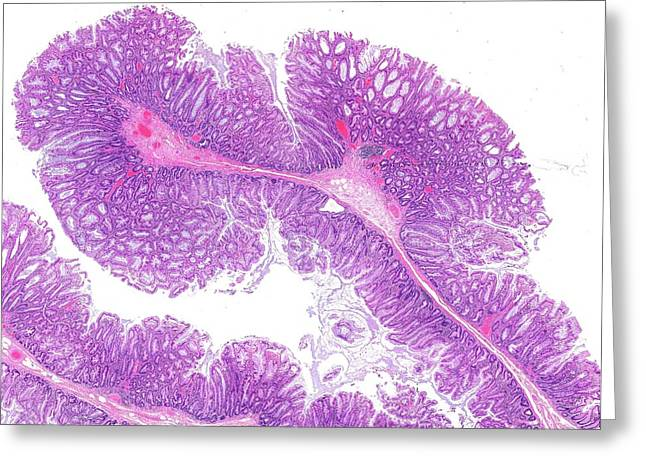 Colon Polyp Greeting Card by Microscape