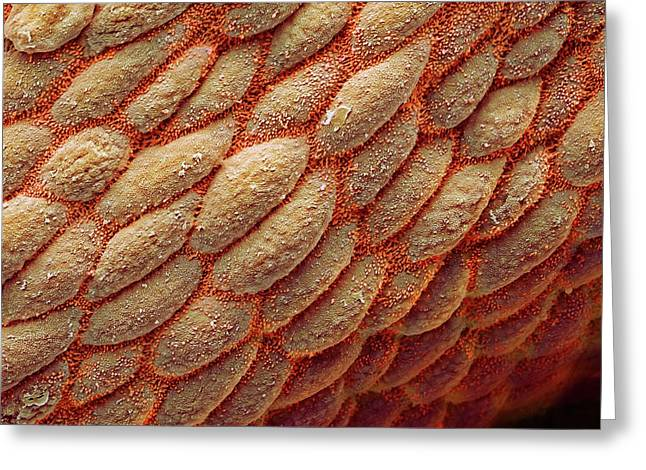 Colon Greeting Card by Steve Gschmeissner