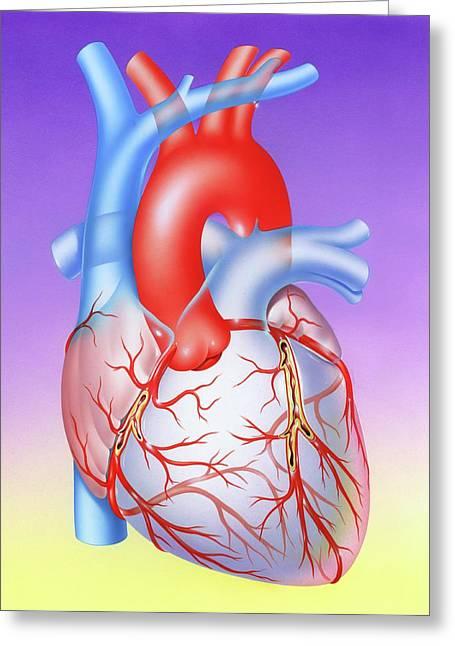 Coronary Atherosclerosis Greeting Card by John Bavosi