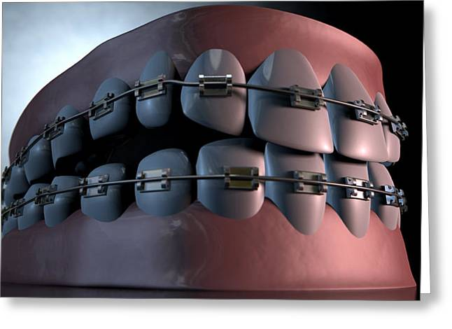 Canine Digital Art Greeting Cards - Creepy Teeth With Braces Greeting Card by Allan Swart