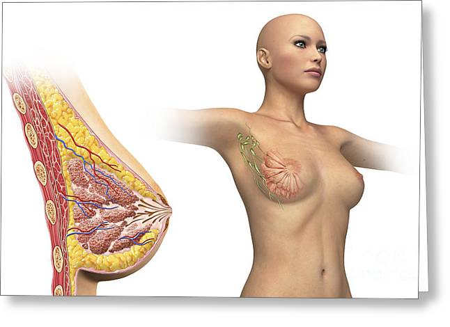 Incision Greeting Cards - Cutaway View Of Female Breast Greeting Card by Leonello Calvetti