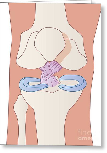Tibia Greeting Cards - Damaged Knee Ligament, Artwork Greeting Card by Peter Gardiner