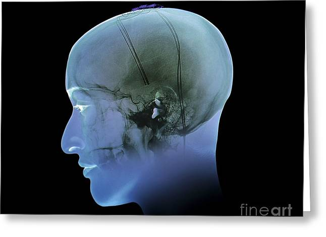 Electrical Stimulation Greeting Cards - Deep Brain Stimulation, X-ray Greeting Card by Zephyr