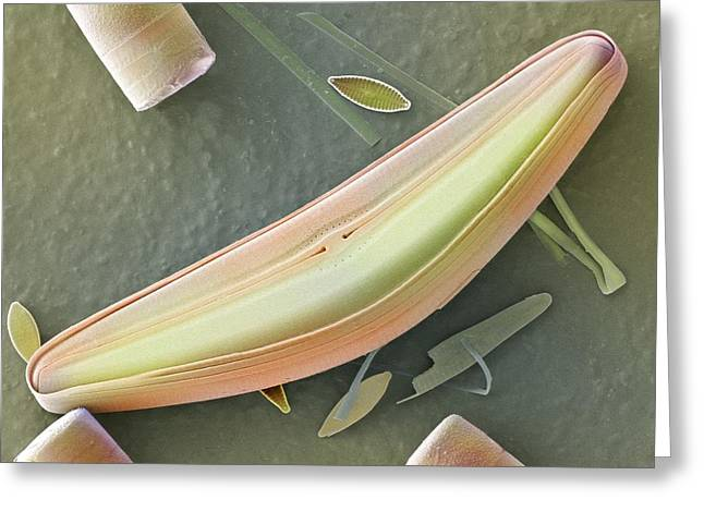 Frustule Photographs Greeting Cards - Diatom frustules (SEM) Greeting Card by Science Photo Library