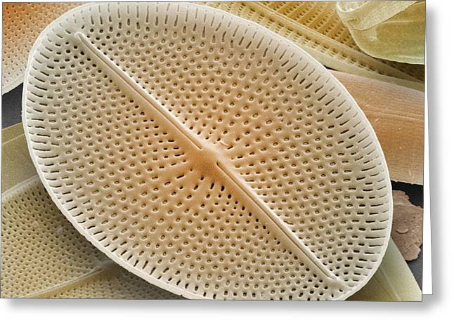 Diatoms Photographs Greeting Cards - Diatom, Sem Greeting Card by Andrew Syred