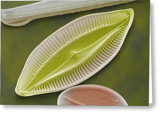 Calcareous Phytoplankton Photographs Greeting Cards - Diatom, Sem Greeting Card by Power And Syred