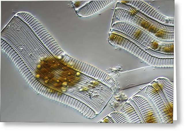 Striae Greeting Cards - Diatoms, light micrograph Greeting Card by Science Photo Library
