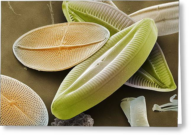 Calcareous Phytoplankton Photographs Greeting Cards - Diatoms, Sem Greeting Card by Power And Syred