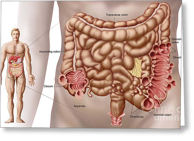 Diverticulitis In The Descending Colon Greeting Card by Stocktrek Images