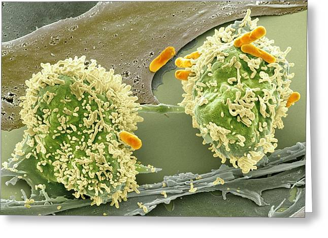 Dividing cancer cell, SEM Greeting Card by Science Photo Library