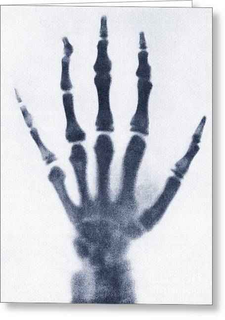 Medical X-ray Greeting Cards - Early X-ray Of A Childs Hand Greeting Card by Sheila Terry