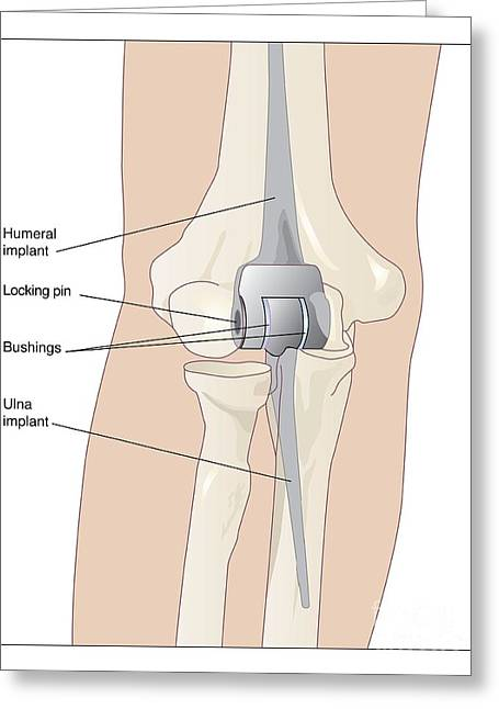 Elbows Greeting Cards - Elbow Replacement, Artwork Greeting Card by Peter Gardiner