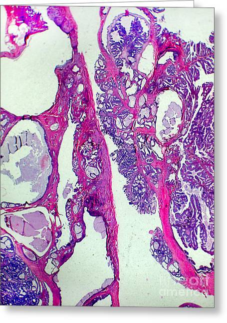 Micrography Greeting Cards - Endometrial Cancer, Lm Greeting Card by Garry DeLong
