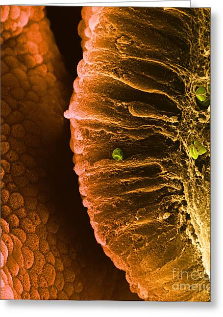Enhanced Greeting Cards - Epithelial Cells Sem Greeting Card by David M. Phillips