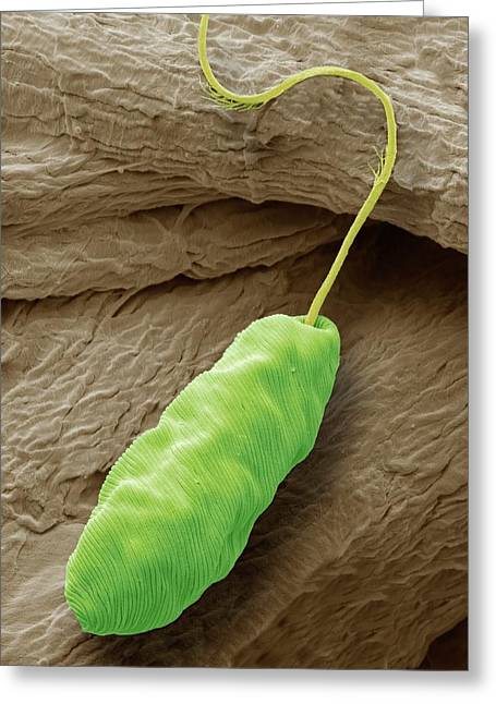 Euglena Flagellate Protozoan Greeting Card by Steve Gschmeissner