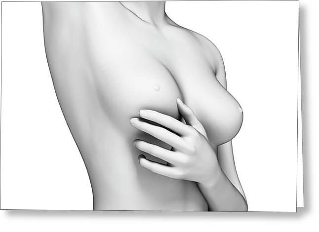 Female Examining Her Breast Greeting Card by Sebastian Kaulitzki