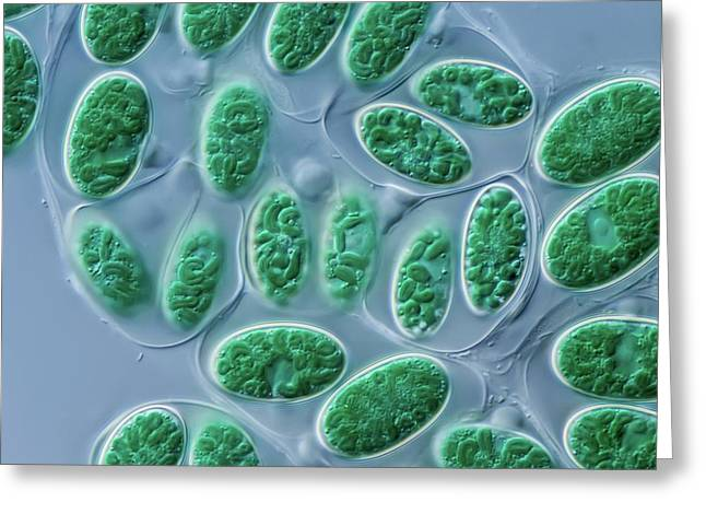 Glaucocystis Algae Greeting Card by Gerd Guenther