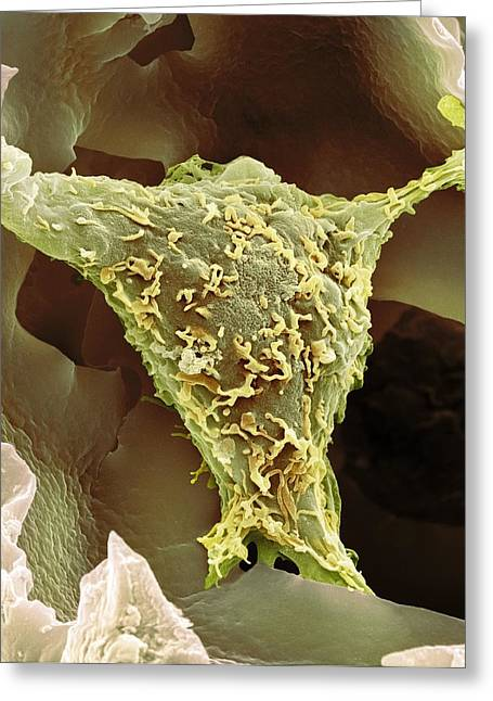 Biological Greeting Cards - HeLa cell, SEM Greeting Card by Science Photo Library