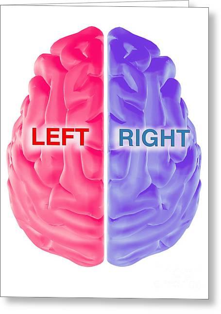 Hemispheres Of The Brain Greeting Card by Scott Camazine