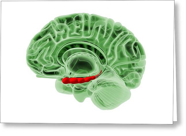 Human Awareness Greeting Cards - Human brain, artwork Greeting Card by Science Photo Library