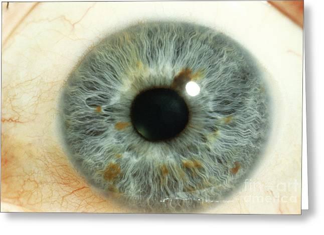 Eyelash Greeting Cards - Human Eye Greeting Card by Ralph C. Eagle, Jr.