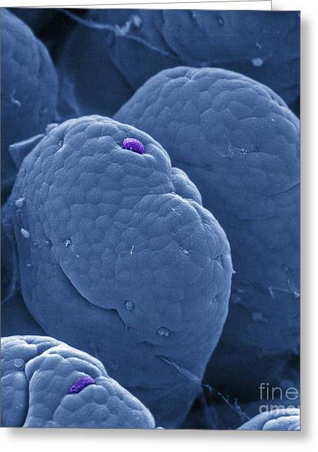 Intestinal Greeting Cards - Intestinal Villi Cell Loss, Sem Greeting Card by Spl