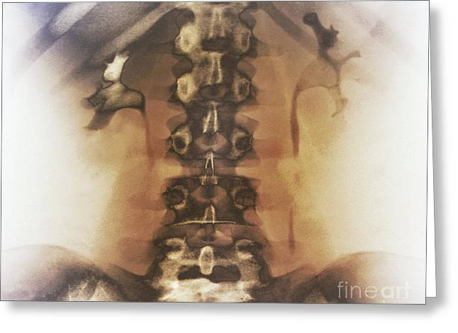 Kidney Stones, X-ray Greeting Card by Zephyr