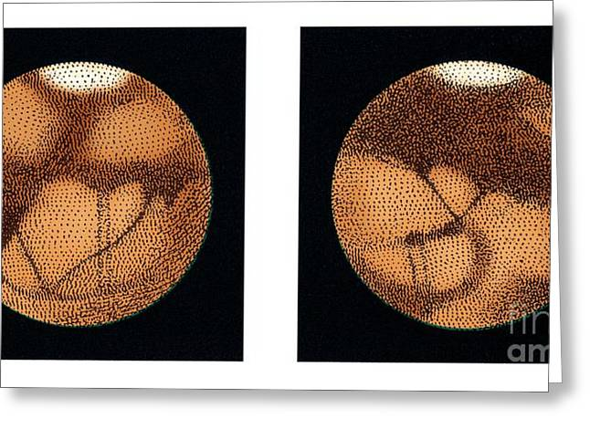 Planet Map Greeting Cards - Lowells Observations Of Mars Greeting Card by Detlev van Ravenswaay