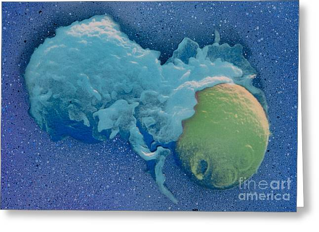 Sem Greeting Cards - Macrophage Englufing Yeast Cell Greeting Card by Biology Pics