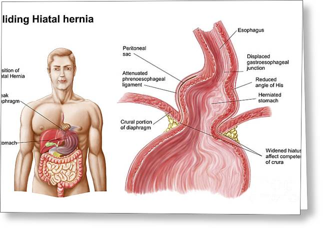 Hernia Greeting Cards - Medical Ilustration Of A Hiatal Hernia Greeting Card by Stocktrek Images