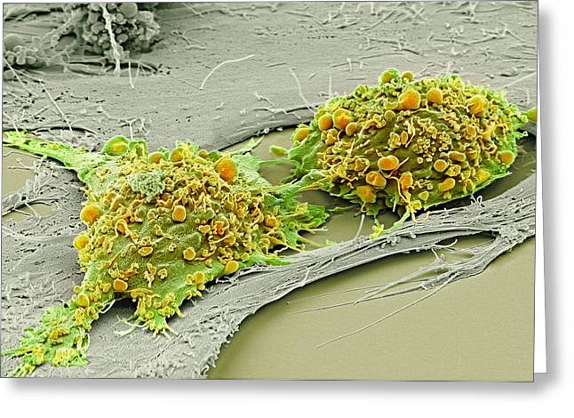 Scanning Electron Microscope Greeting Cards - Mesenchymal stem cells, SEM Greeting Card by Science Photo Library