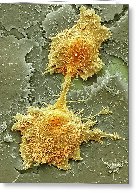 Squamous Greeting Cards - Mouth cancer cell dividing, SEM Greeting Card by Science Photo Library